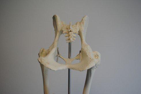 Links normaal en rechts met artrose.
